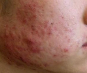 Can anything be done about scarring caused by acne?